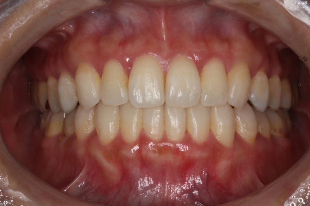こどもの永久歯に差し歯?