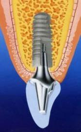 こども 歯の外傷 歯の喪失 入れ歯 ブリッジ インプラント