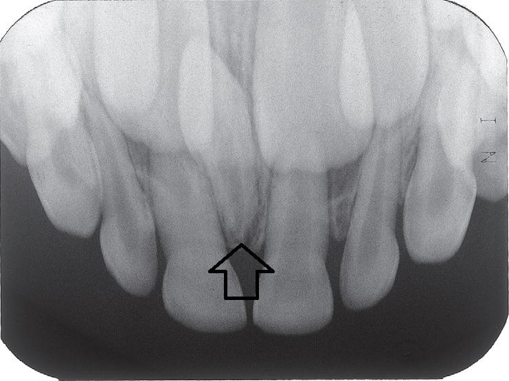過剰歯って知ってますか?