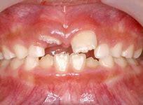 上の前歯(永久歯)の生え方が変?(みにくいあひるの子の時代)